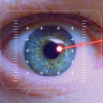 La technologie laser n'en finit pas de se perfectionner